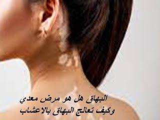 البهاق هل هو مرض معدي وكيف تعالج البهاق بالاعشاب Vitiligo Tattoo Quotes