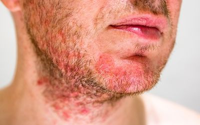 How To Defeat Of Your Dry Skin Under Beard Once And For All Seborrheic Dermatitis Dermatitis Treatment Dermatitis