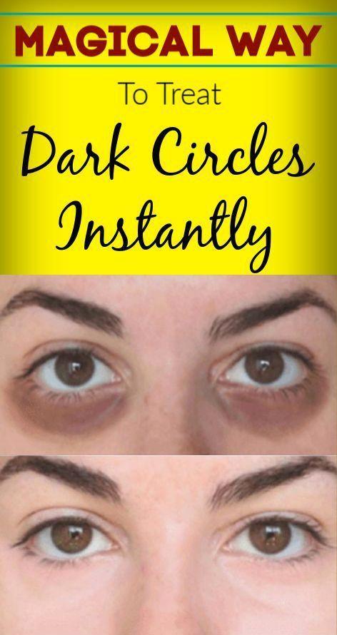 Anti Dark Circles Permanently In 2020 Dark Eye Circles Dark Circles Under Eyes Dark Circles Treatment