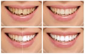 Veneers Near Me Dental Veneers Cost Houston Tx Porcelain Veneers Dentist Dental Cosmetics Dental Veneers Cosmetic Dentist