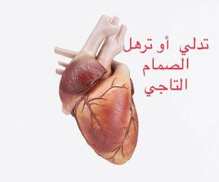 تدلي الصمام التاجي Mitral Valve Prolapse يواجه الكثير من الناس مسطلح تدلي الصمام او ترهل الصمام التاجي و يتسا Human Heart Women Heart Attack Heart Pictures