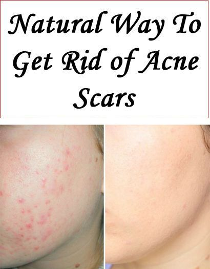 Pin On Home Remedies For Acnes