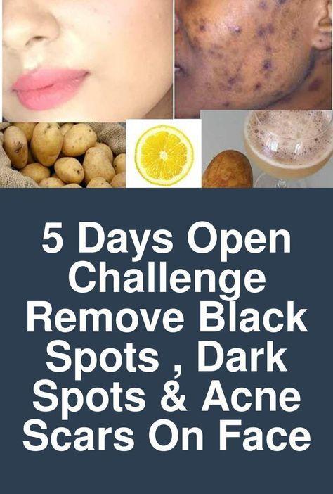 5 Days Open Challenge - Remove BLACK SPOTS , DARK SPOTS & ACNE SCARS
