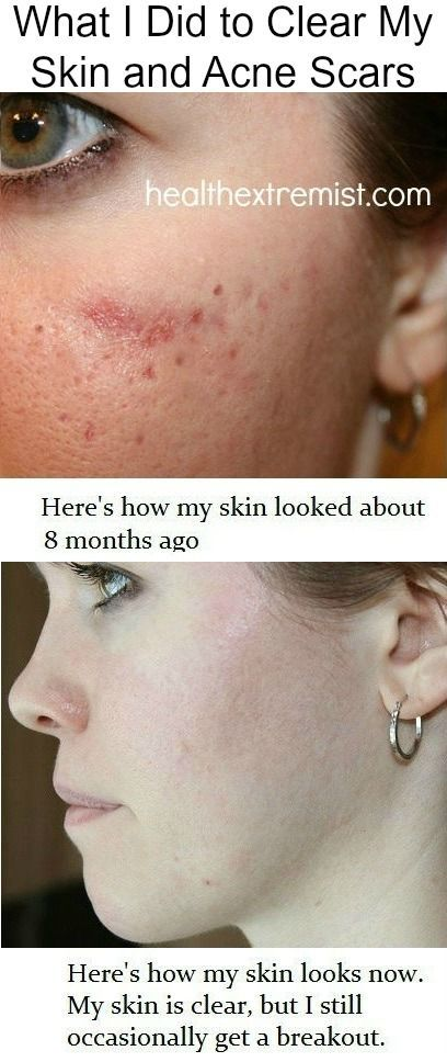 Pin On Acne Scars