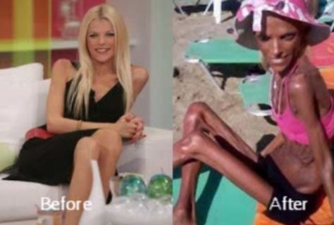 Self-Confessed Stars Who Battled Anorexia