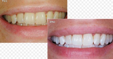 missfärgade tänder bakpulver