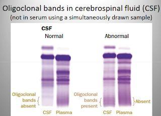 تحليل السائل الدماغي الشوكي و أهميته في تشخيص أمراض الجهاز العصبي المركزي Cerebrospinal Fluid Central Nervous System Nervous System