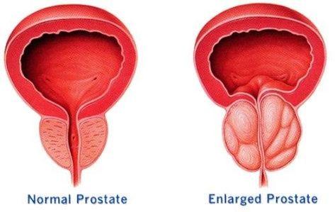prostata massage tutorial