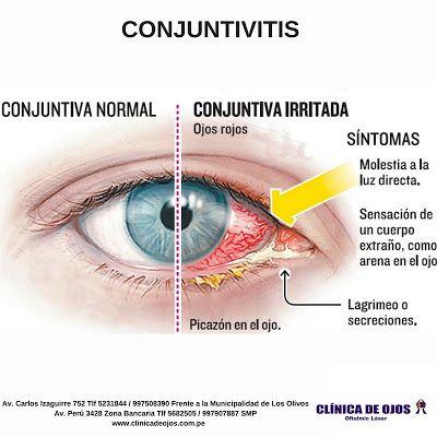 cuál es el síntoma de infección ocular