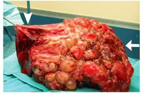 Polycystic liver disease. NEJM    16 August 2014 Dr Mustapha Tahir