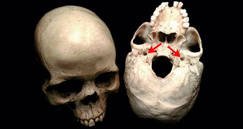 BLOOD FLOW The internal carotid arteries pass into the skull through two tiny…