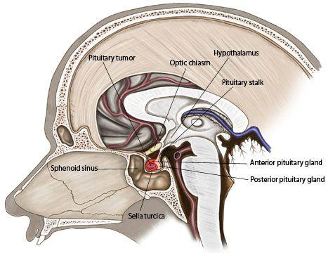 macroadenoma cirugía pituitaria y diabetes