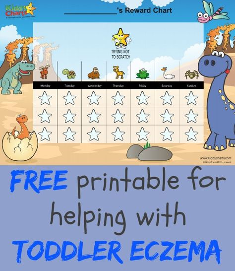 Does your little one suffer from toddler eczema? We have some wonderful reward charts for kids, including one to help them t stop scratching - check it out, its FREE!