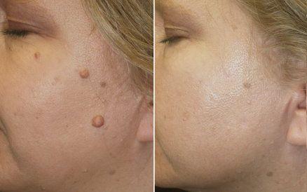 Pin By Susan Komczyk On Buy Me Skin Spot Remover Blue Light Therapy Skin Skin Spots