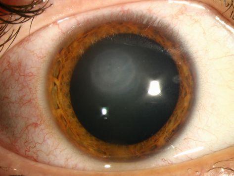 243 best Eye images on Pinterest Eye doctor, Eyeglasses and - presumed ocular histoplasmosis