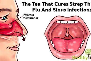 Una infección sinusal hace que tu cuerpo duela