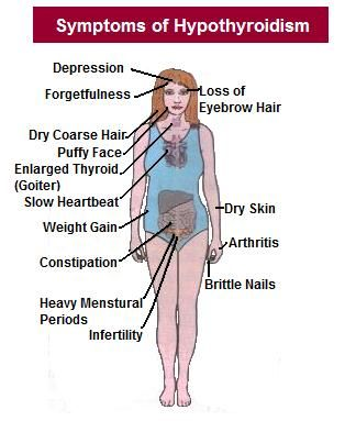 Pin By Eugenia On Thyroid Related Hypothyroidism Treatment