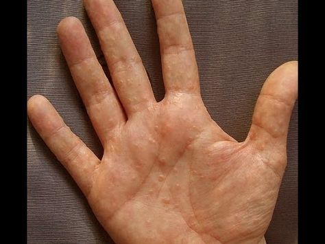 Dermatitis Or Dyshidrosis How I Prevent Getting Painful And