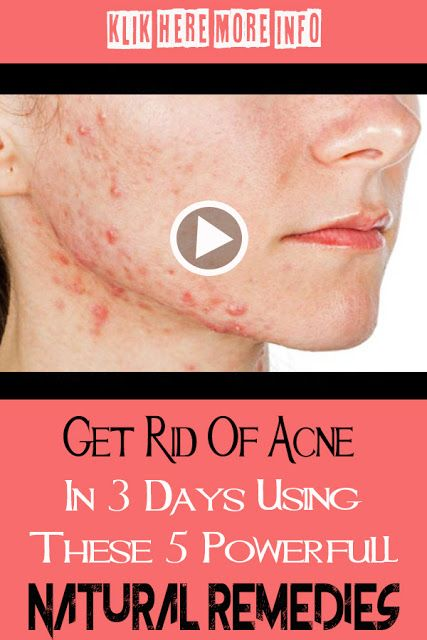 Natural Skin Care Tips For Acne To Get Rid Of Your Symptoms Fast Skin Care Tips Herbal Skin Care Natural Skin Care