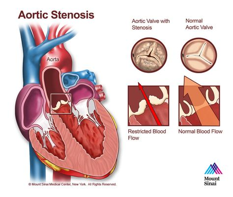 Causes Of Aortic Stenosis Video Healthination Study Notes