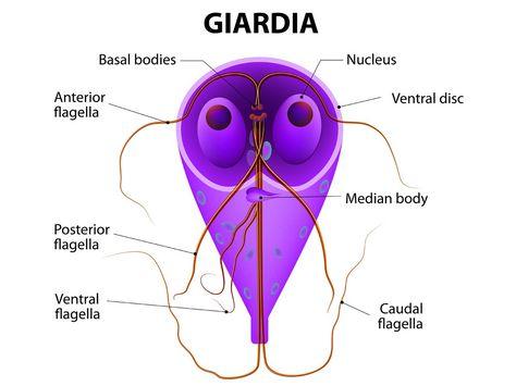 Giardia muris la oameni, Simptomele paraziţilor intestinali: Giardia