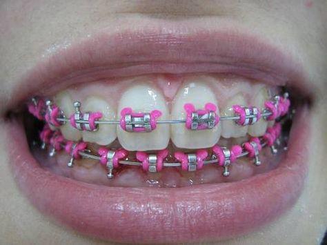 Rosa Ate Nos Dentes 3 Com Imagens Aparelho Dentes Rosas