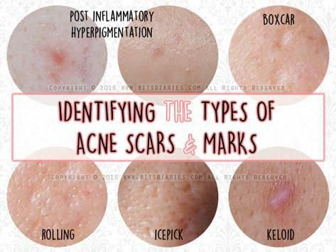 How To Get Rid Of Rolling Acne Scars Naturally