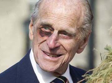 The Black Eye Club Eye Black Bruises Prince Philip