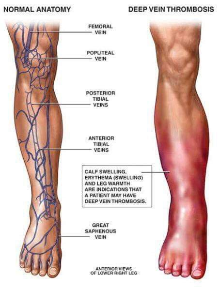 Thrombosis Occurs When Blood Clots Block Your Blood Vessels There