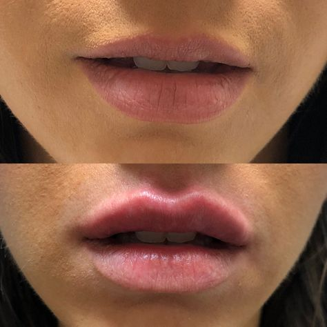 Lip Injections Before and After Lip injections - the good, bad and ugly. Read all about Ashlee Jaine's experience with injections. | lip injections before and after lip injections lip injections before and after juvederm  lip injections shapes lip injections men lip injection lip fillers before and after lip fillers lip fillers before and after juveder, lip fillers shapes lip fillers ideas lip fillers styles juvederm before and after juvederm lips juvederm before and after lips juvederm