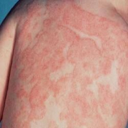 95380e4992279430e0defacd1ac11d4c - How To Get Rid Of Yeast Infection In Skin Folds