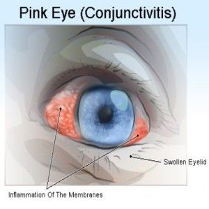 Natural Treatments For Conjunctivitis