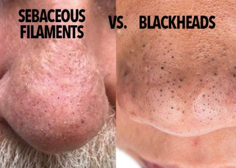 How to Get Rid of Blackheads in Ear - YouTube