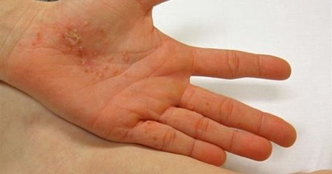 Dyshidrotic Eczema Natural Treatment Laser Eye Surgery Cost