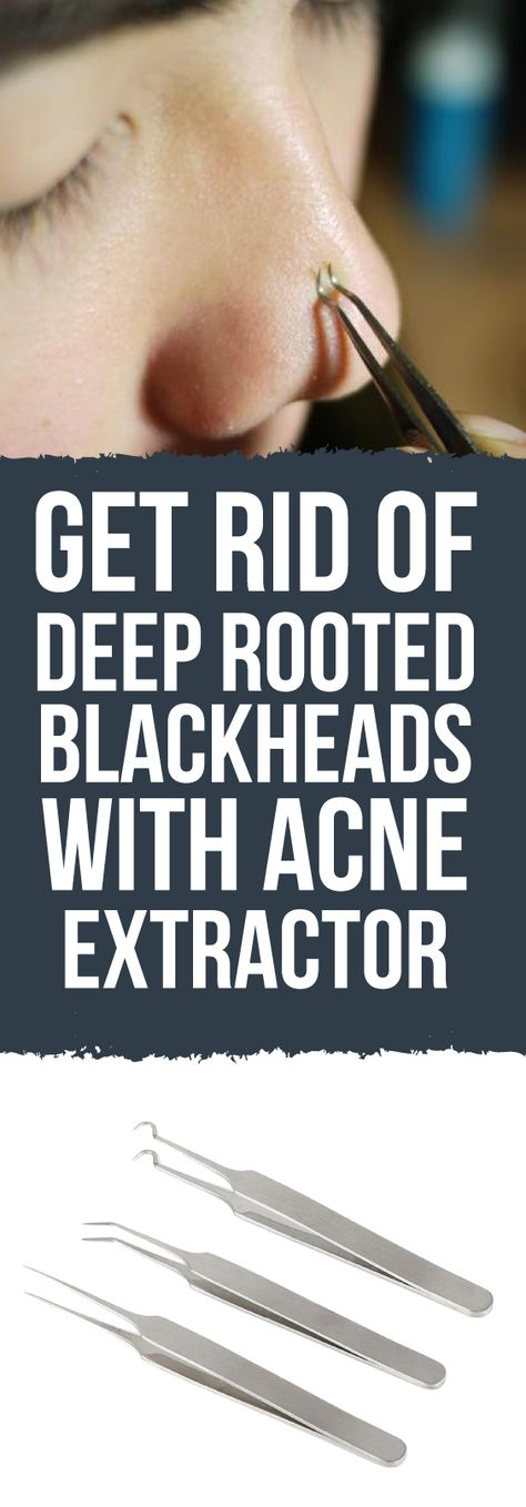 Getting rid of those ugly, irritating blackheads can be tricky and could lead to serious infection if not done correctly!  The Blackhead and Comedone Acne Extractor will definitely do the job! Proven safe and effective!