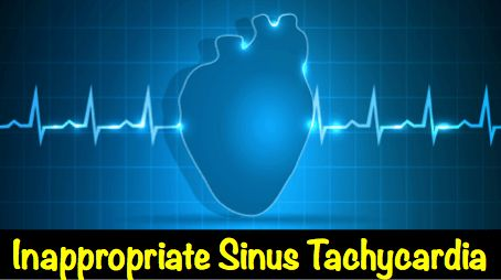 An article by a cardiologist about inappropriate sinus tachycardia, an explanation of what it is, how it is evaluated and also possible treatment options