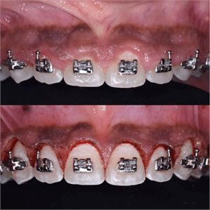 Gingivectomy Procedure Around Orthodontic Brackets To Reshape And Recontour The Gum Smile Line Orthodontics Aesthetic Dentistry Dental Care Clinic