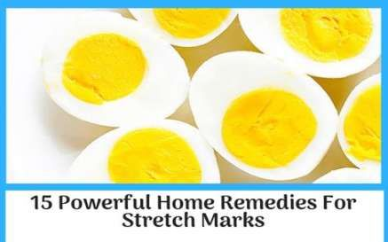 Best Skin Remedies For Stretch Marks Ideas Skin With Images