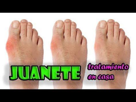 Masaje Y Estiramientos Para Tratar Juanete En Casa Sin Cirugia Youtube Remedios Para Juanetes Ejercicios Para Los Pies Huesos De Los Dedos