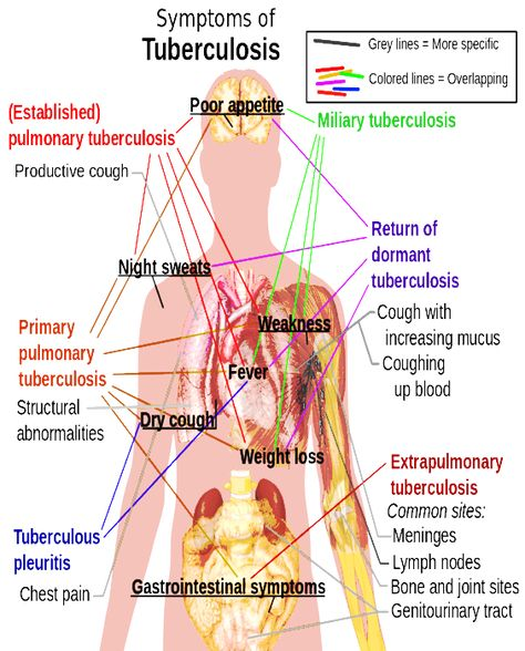 Tuberculosis (TB) is an infectious disease and generally affects the lungs,  but can also affect other parts of the body. Most infections do not have ...