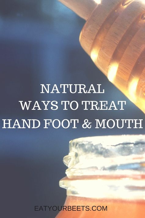Natural Ways to Treat Hand Foot and Mouth