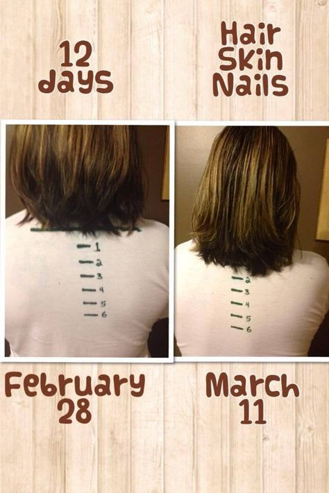 Hsn Want Longer Stronger Hair And Nails Want Healthier