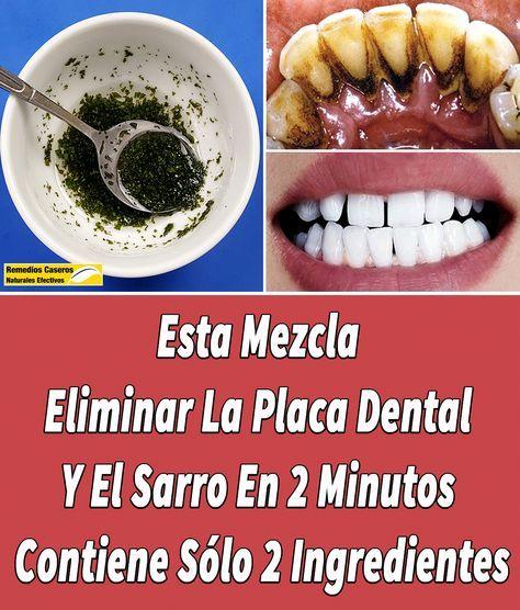 Este Remedio De 2 Ingredientes Puede Ayudarle A Eliminar La Placa Dental Y El Sarro Naturalmente Comoeliminarlaplacade Placas Dentales 2 Ingredientes Dental