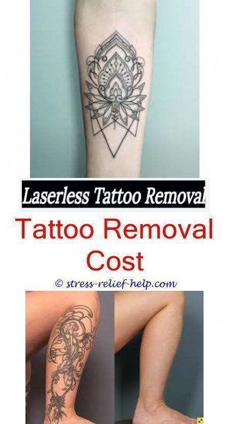 Tattoo Removal Costs Can I Remove Tattoos Function