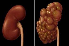 rinichi de ficat de colon detox