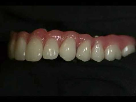All On 4 Implant Bar Supported Denture Youtube Denture Implants Dental Implants Mini Dental Implants