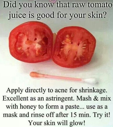 natural-acne-pimple-spot-treatment I've been doing this for years!!