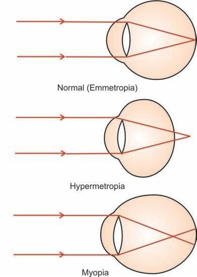 Reflection In The Eye Definition Myopia Emmetropia Ametropia