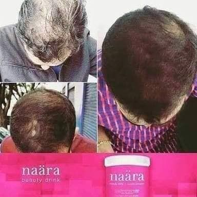 Naara S Beauty Promoting Nutrients Like Vitamin C Biotin Niacin And Zinc Help Guard Your Youthful Beauty Drinks Normal Hair Life Changing Opportunity