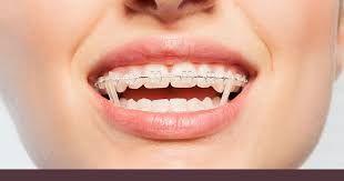 Orthodontic Band Market Orthodontics Dental Braces Getting Braces